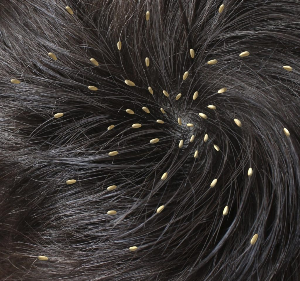 WHAT DOES LICE LOOK LIKE?