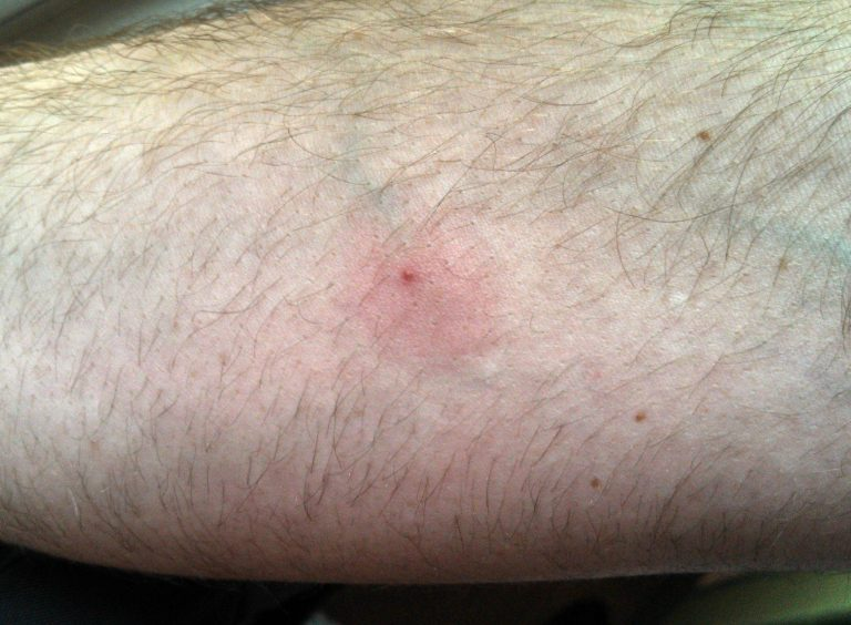 Normal Reaction to Ant Bite